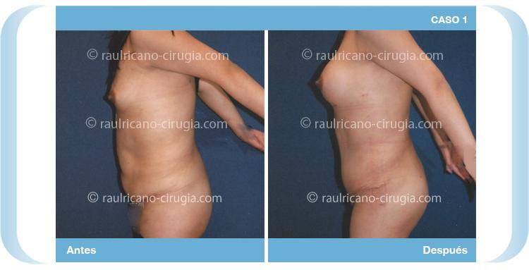 Inyecciones de mama grasa