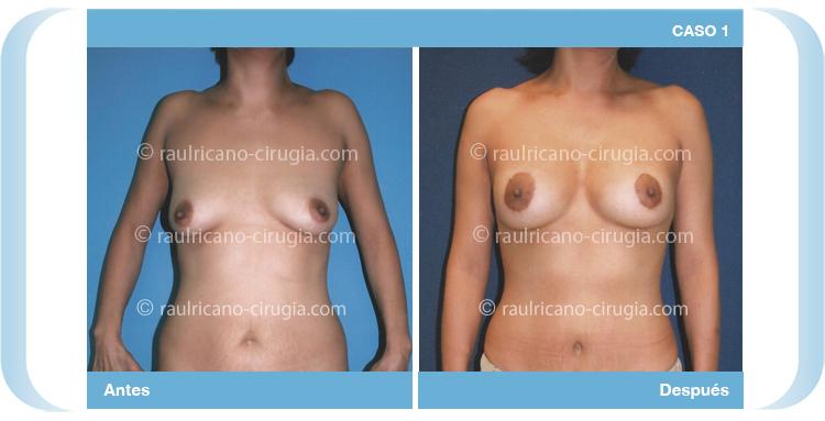 Levantamiento de senos con aumento